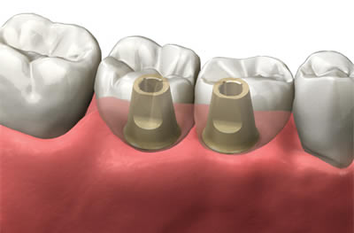 There's No Need To Put Up With Bad Teeth – Act Now!