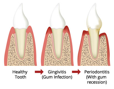 Bleeding Gums – What Does It Mean?