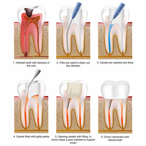 Preserving A Tooth With Root Canal Treatment